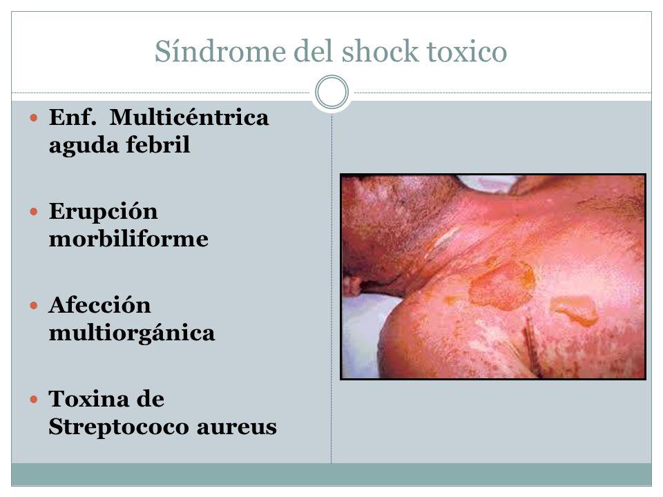 Síndrome del shock toxico Enf.