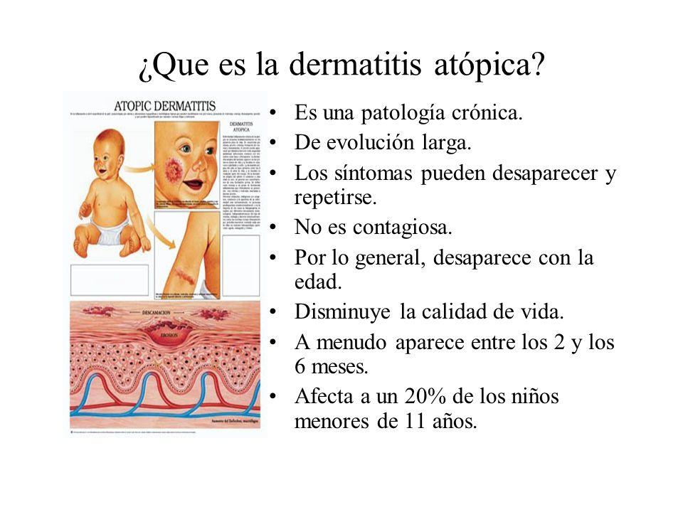 ¿Que es la dermatitis atópica.Es una patología crónica.