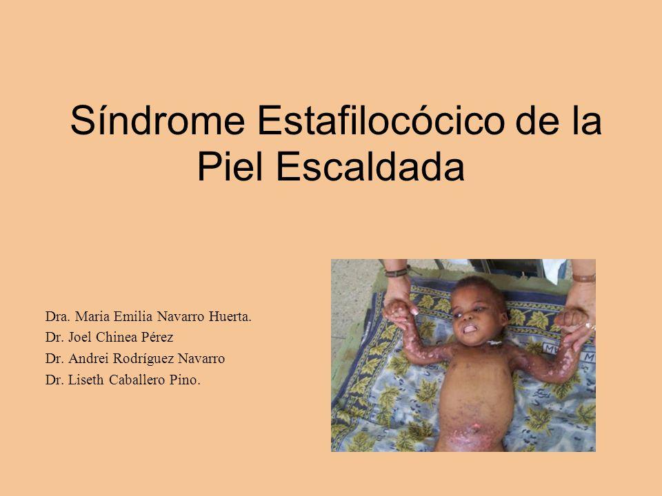 Síndrome Estafilocócico de la Piel Escaldada Dra. Maria Emilia Navarro Huerta. Dr. Joel Chinea Pérez Dr. Andrei Rodríguez Navarro Dr. Liseth Caballero
