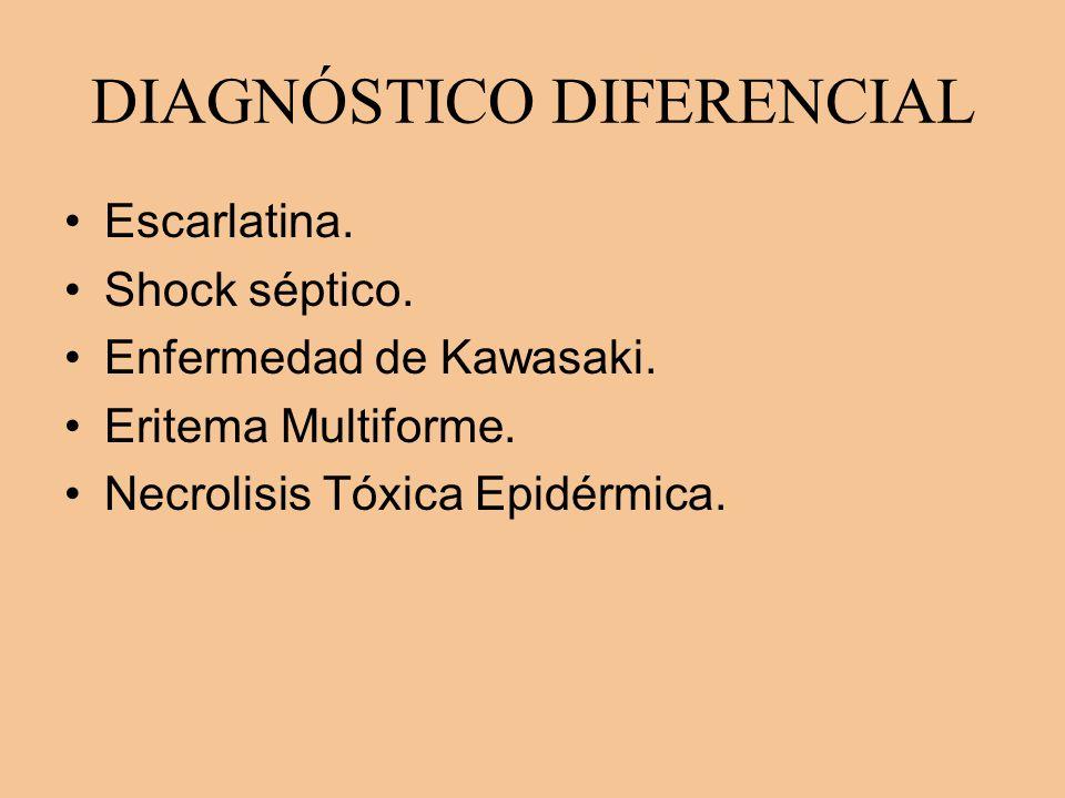 DIAGNÓSTICO DIFERENCIAL Escarlatina. Shock séptico. Enfermedad de Kawasaki. Eritema Multiforme. Necrolisis Tóxica Epidérmica.