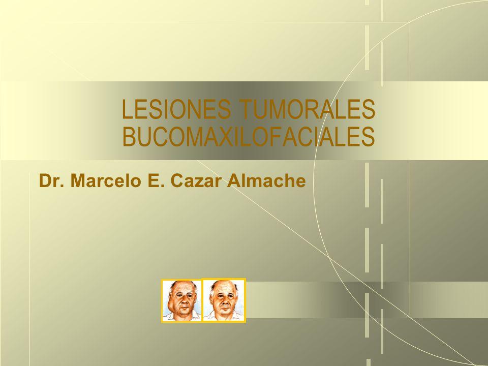 18/03/10 LESIONES TUMORALES BUCOMAXILOFACIALES Dr. Marcelo E. Cazar Almache