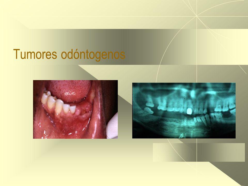 Tumores odóntogenos