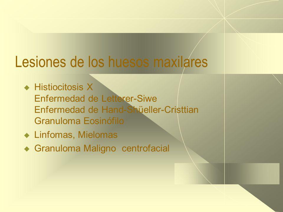 Lesiones de los huesos maxilares  Histiocitosis X Enfermedad de Letterer-Siwe Enfermedad de Hand-Shüeller-Cristtian Granuloma Eosinófilo  Linfomas, Mielomas  Granuloma Maligno centrofacial