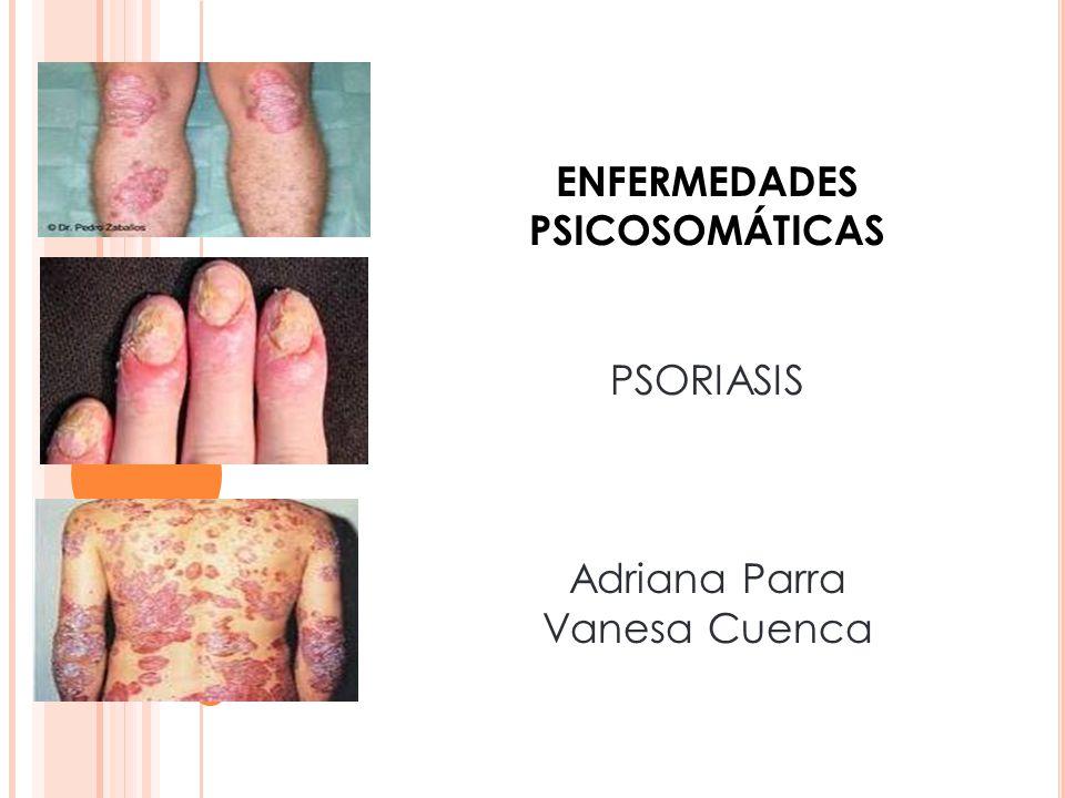 ENFERMEDADES PSICOSOMÁTICAS PSORIASIS Adriana Parra Vanesa Cuenca