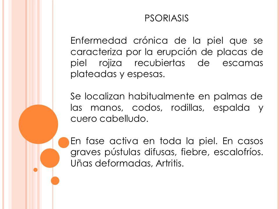 PSORIASIS Enfermedad crónica de la piel que se caracteriza por la erupción de placas de piel rojiza recubiertas de escamas plateadas y espesas. Se loc