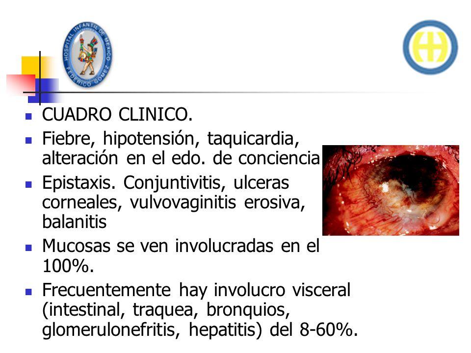 CUADRO CLINICO. Fiebre, hipotensión, taquicardia, alteración en el edo. de conciencia. Epistaxis. Conjuntivitis, ulceras corneales, vulvovaginitis ero