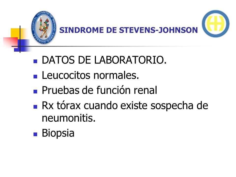 SINDROME DE STEVENS-JOHNSON DATOS DE LABORATORIO. Leucocitos normales. Pruebas de función renal Rx tórax cuando existe sospecha de neumonitis. Biopsia