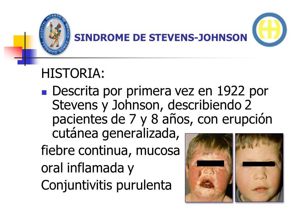 SINDROME DE STEVENS-JOHNSON DIAGNOSTICO Enfermedad febril aguda Lesiones en diana de 3 cm de diámetro Involucra por lo menos 2 membranas mucosas, y Y menos del 20% de SC involucrada en las primeras 48 hrs.