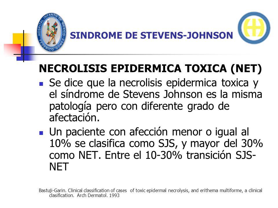 SINDROME DE STEVENS-JOHNSON NECROLISIS EPIDERMICA TOXICA (NET) Eritema confluente obscuro, asociado con desprendimiento de epidermis, eritema de mucosas, y ulceraciones, confirmado por biopsia que muestra necrosis en todo el grosor de la epidermis y desprendimiento.