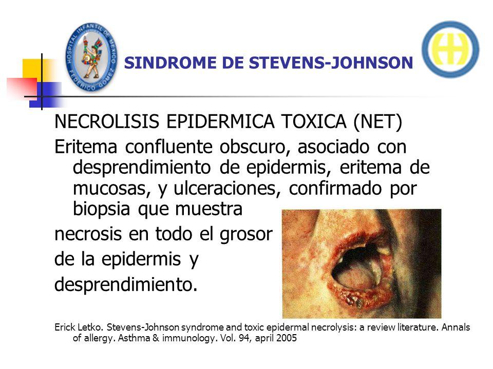 SINDROME DE STEVENS-JOHNSON NECROLISIS EPIDERMICA TOXICA (NET) Eritema confluente obscuro, asociado con desprendimiento de epidermis, eritema de mucos