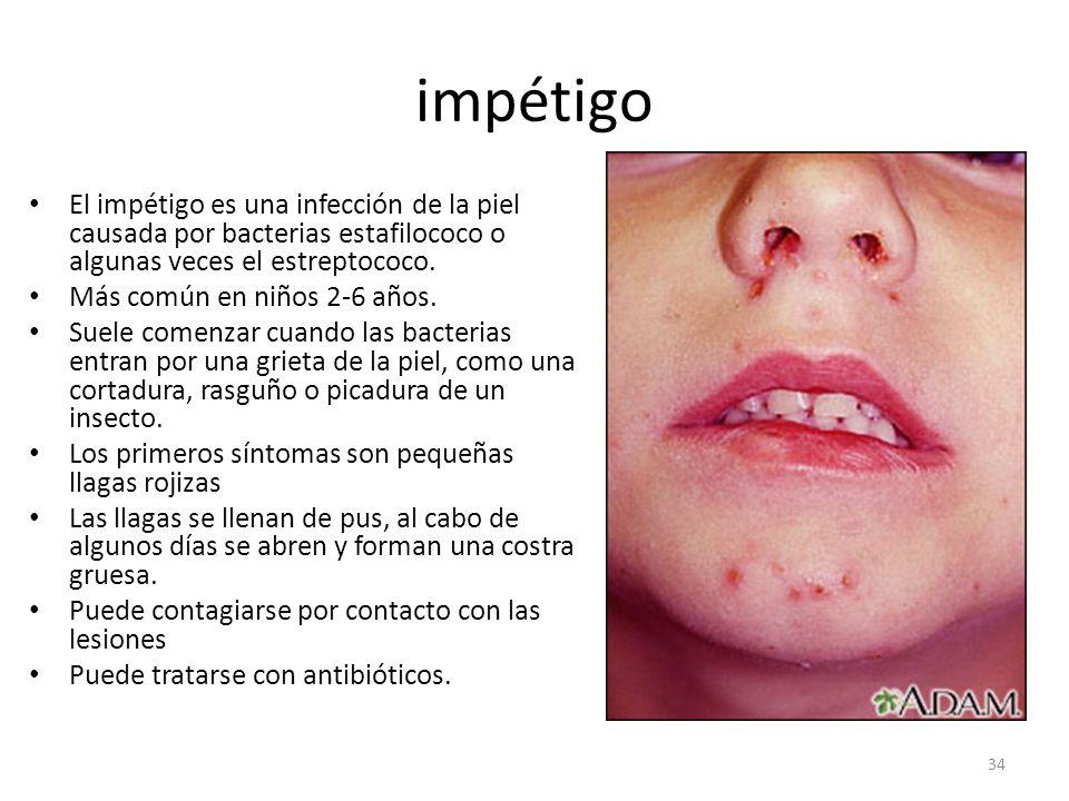 impétigo El impétigo es una infección de la piel causada por bacterias estafilococo o algunas veces el estreptococo.