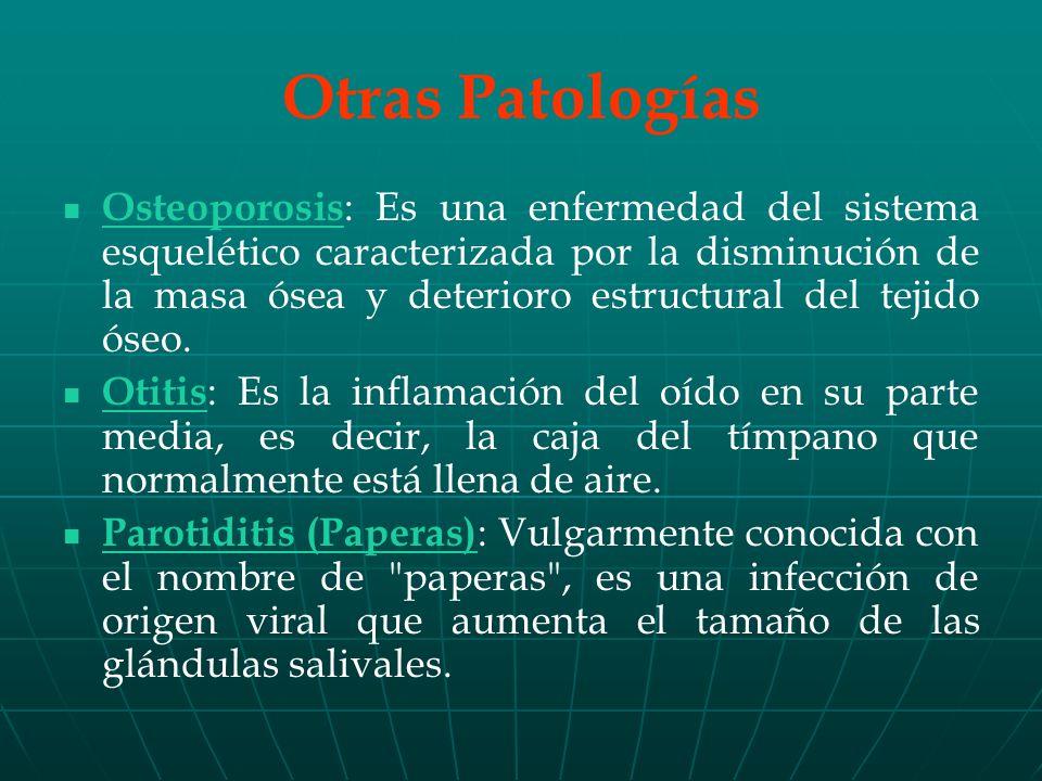 Osteoporosis : Es una enfermedad del sistema esquelético caracterizada por la disminución de la masa ósea y deterioro estructural del tejido óseo.