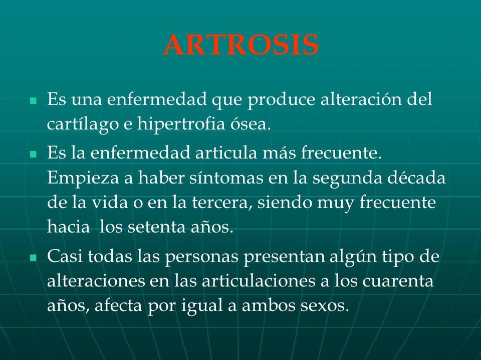 ARTROSIS Es una enfermedad que produce alteración del cartílago e hipertrofia ósea.
