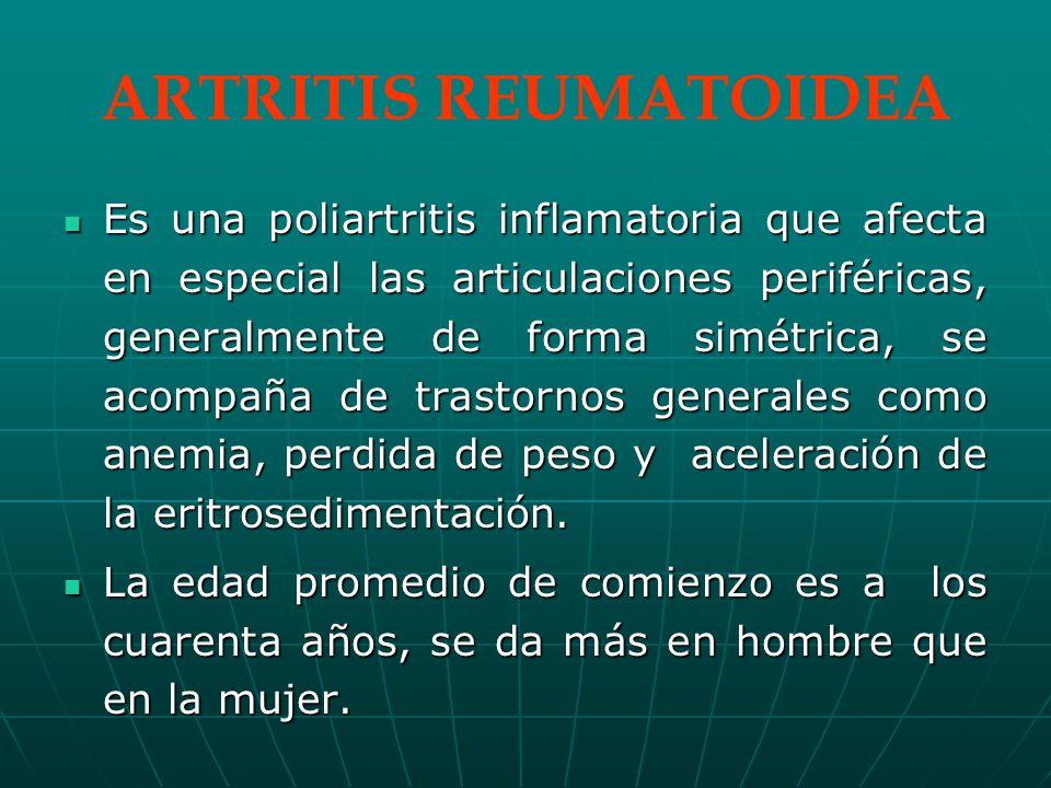 ARTRITIS REUMATOIDEA Es una poliartritis inflamatoria que afecta en especial las articulaciones periféricas, generalmente de forma simétrica, se acompaña de trastornos generales como anemia, perdida de peso y aceleración de la eritrosedimentación.