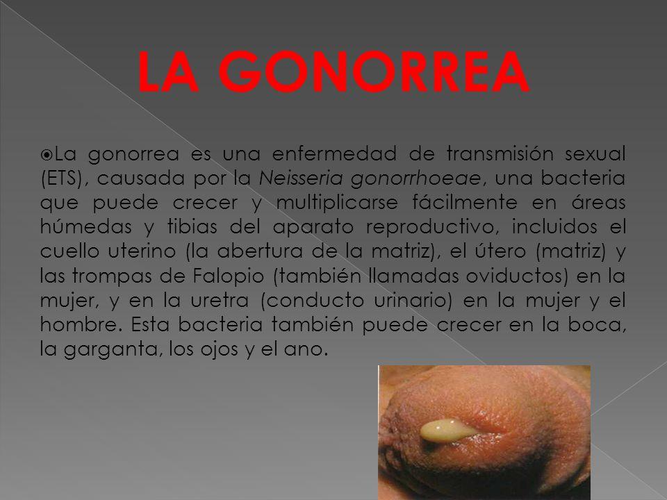 LA GONORREA  La gonorrea es una enfermedad de transmisión sexual (ETS), causada por la Neisseria gonorrhoeae, una bacteria que puede crecer y multiplicarse fácilmente en áreas húmedas y tibias del aparato reproductivo, incluidos el cuello uterino (la abertura de la matriz), el útero (matriz) y las trompas de Falopio (también llamadas oviductos) en la mujer, y en la uretra (conducto urinario) en la mujer y el hombre.