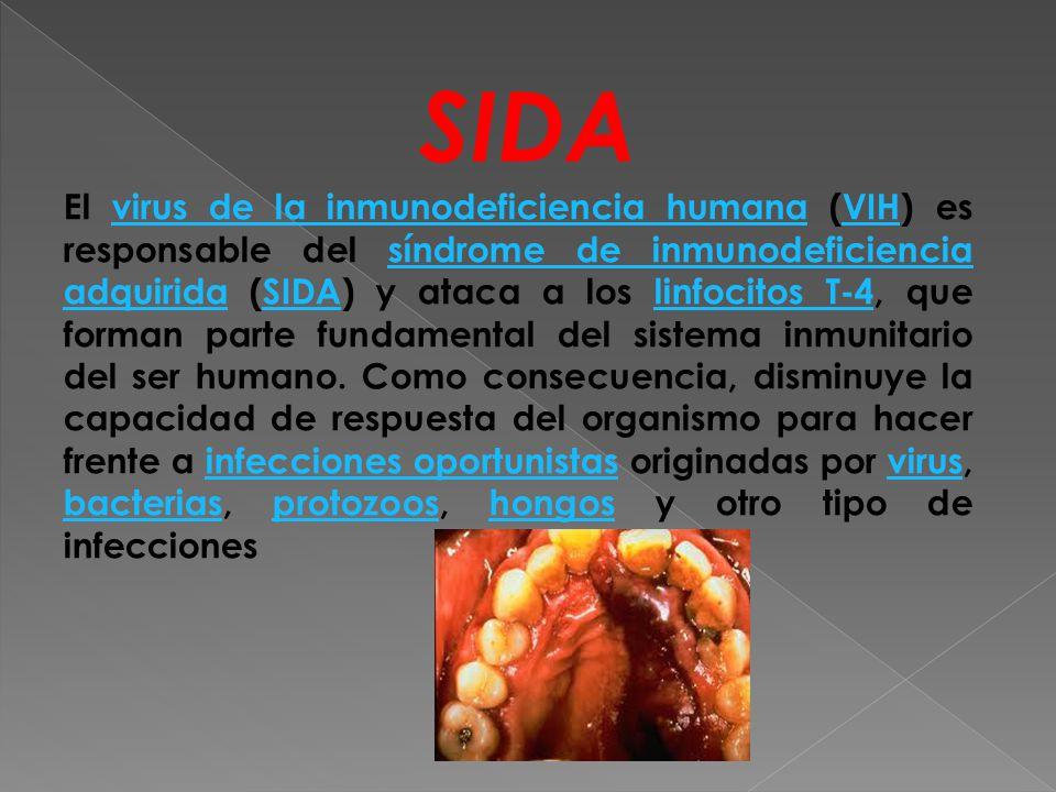 SIDA El virus de la inmunodeficiencia humana (VIH) es responsable del síndrome de inmunodeficiencia adquirida (SIDA) y ataca a los linfocitos T-4, que forman parte fundamental del sistema inmunitario del ser humano.
