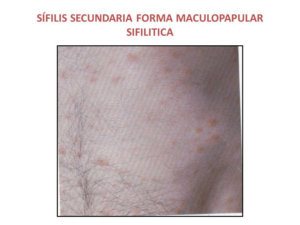 SÍFILIS SECUNDARIA FORMA MACULOPAPULAR SIFILITICA
