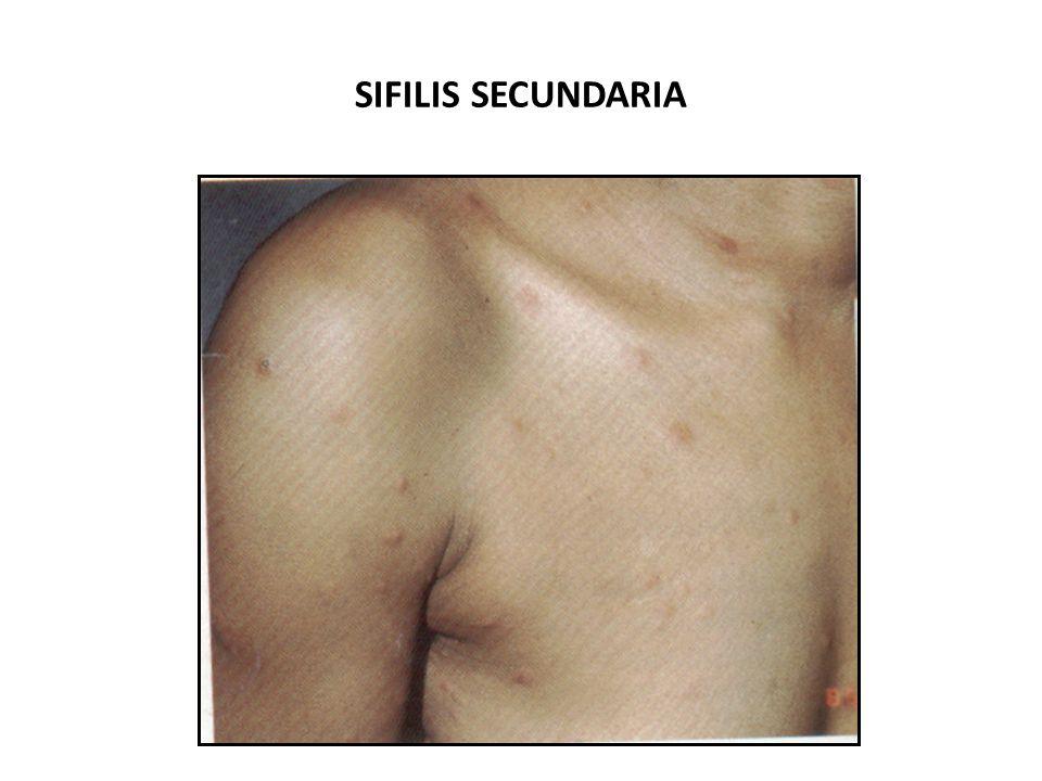 SIFILIS SECUNDARIA