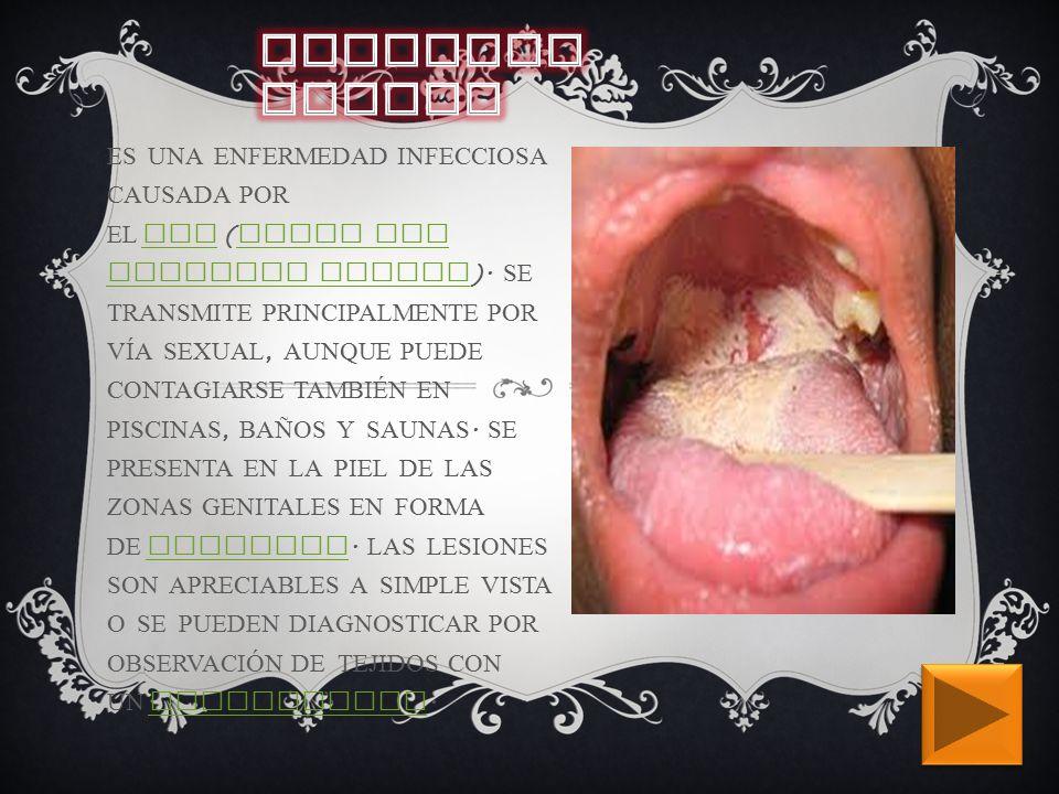 ES UNA ENFERMEDAD INFECCIOSA CAUSADA POR EL VPH ( VIRUS DEL PAPILOMA HUMANO ).