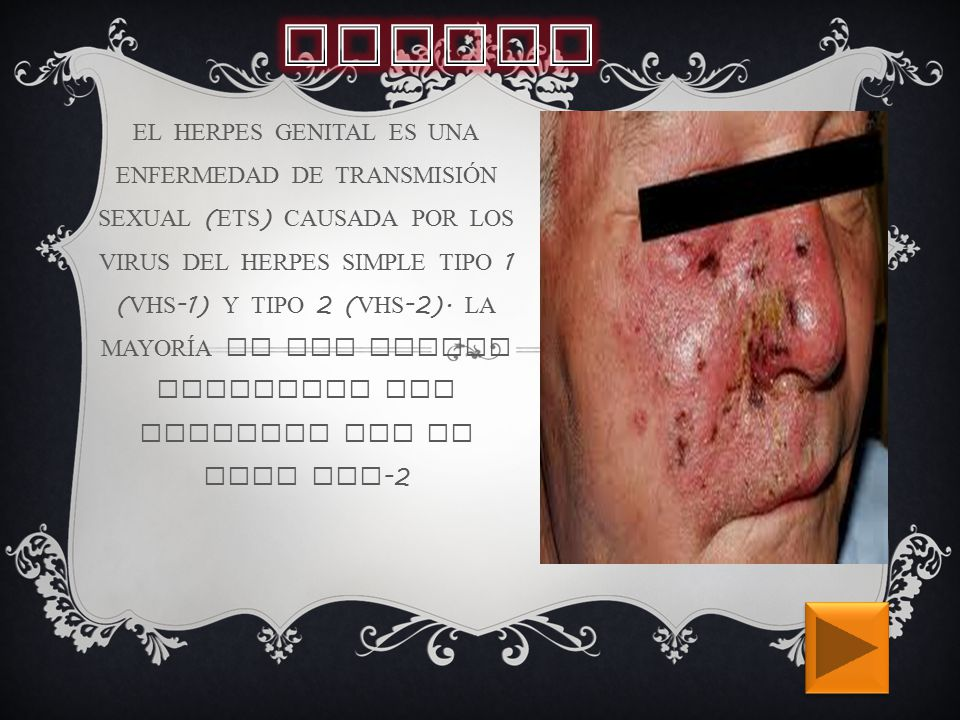 EL HERPES GENITAL ES UNA ENFERMEDAD DE TRANSMISIÓN SEXUAL ( ETS ) CAUSADA POR LOS VIRUS DEL HERPES SIMPLE TIPO 1 ( VHS -1) Y TIPO 2 ( VHS -2).