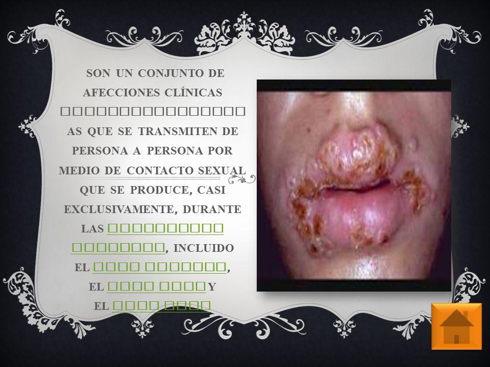 LA GONORREA ES UNA DE LAS INFECCIONES DE TRANSMISIÓN SEXUAL ( ITS ) M Á S FRECUENTES.