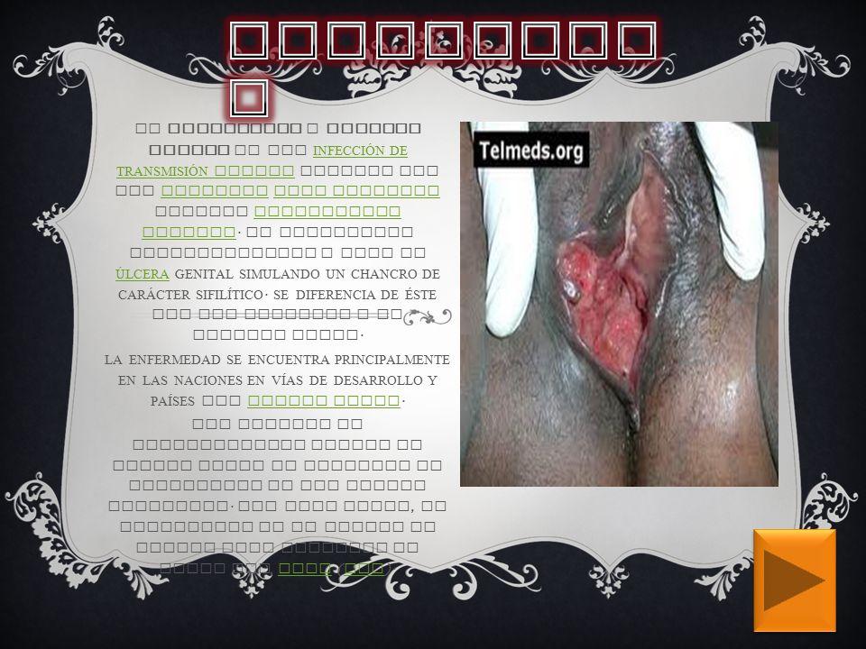 EL CHANCROIDE O CHANCRO BLANDO ES UNA INFECCIÓN DE TRANSMISIÓN SEXUAL CAUSADA POR UNA BACTERIA GRAM NEGATIVA LLAMADA HAEMOPHILUS DUCREYI.
