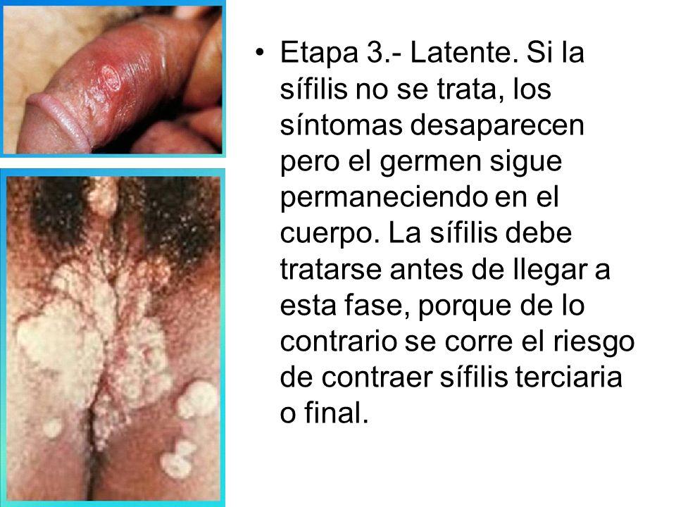 ¿Cuáles son los síntomas de la sífilis.