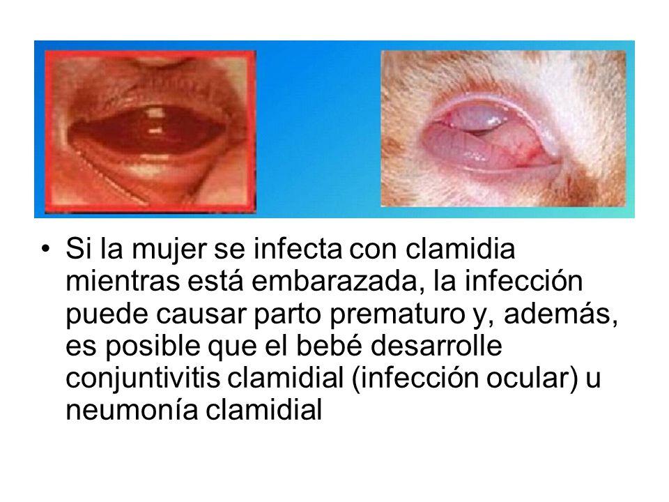 Clamidia (femenina): solo cerca del 30% de las mujeres presentan síntomas por clamidia.