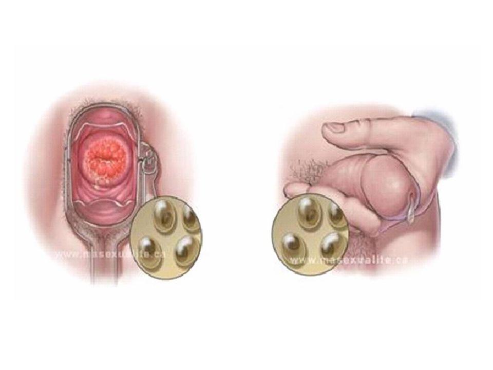 5.La clamidia también puede producir inflamación del recto y la faringe al tener sexo anal y oral con una persona infectada, respectivamente 6.La clamidia también la puede transmitir la madre a su hijo/a durante el parto y producir una conjuntivitis o enfermedad respiratoria en el recién nacido