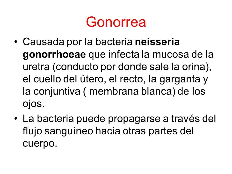 Gonorrea Causada por la bacteria neisseria gonorrhoeae que infecta la mucosa de la uretra (conducto por donde sale la orina), el cuello del útero, el recto, la garganta y la conjuntiva ( membrana blanca) de los ojos.