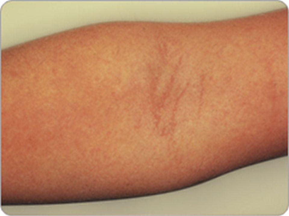 CRITERIOS DIAGNOSTICOS -Catarro leve, malestar, febrícula, dolor de boca y abdominal -Lesiones ulcerativas en boca -Maculo-papulo-vesiculas en manos y pies