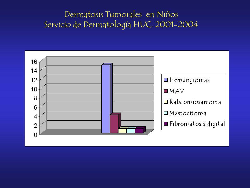 Dermatosis Tumorales en Niños Servicio de Dermatología HUC. 2001-2004