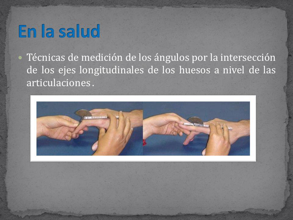 Técnicas de medición de los ángulos por la intersección de los ejes longitudinales de los huesos a nivel de las articulaciones.