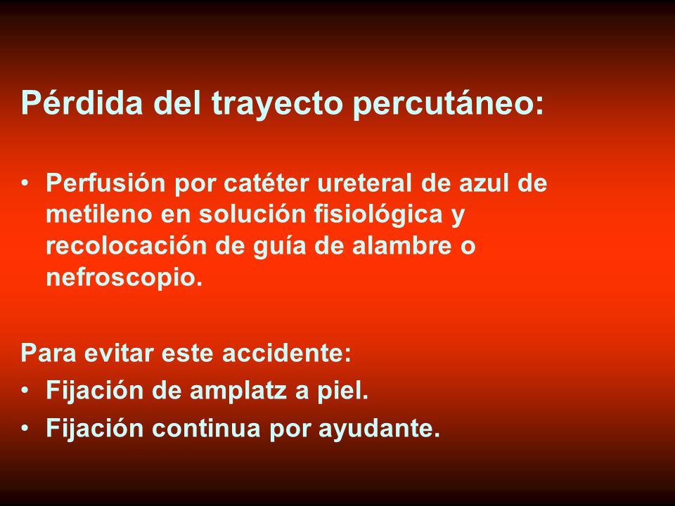 Pérdida del trayecto percutáneo: Perfusión por catéter ureteral de azul de metileno en solución fisiológica y recolocación de guía de alambre o nefroscopio.