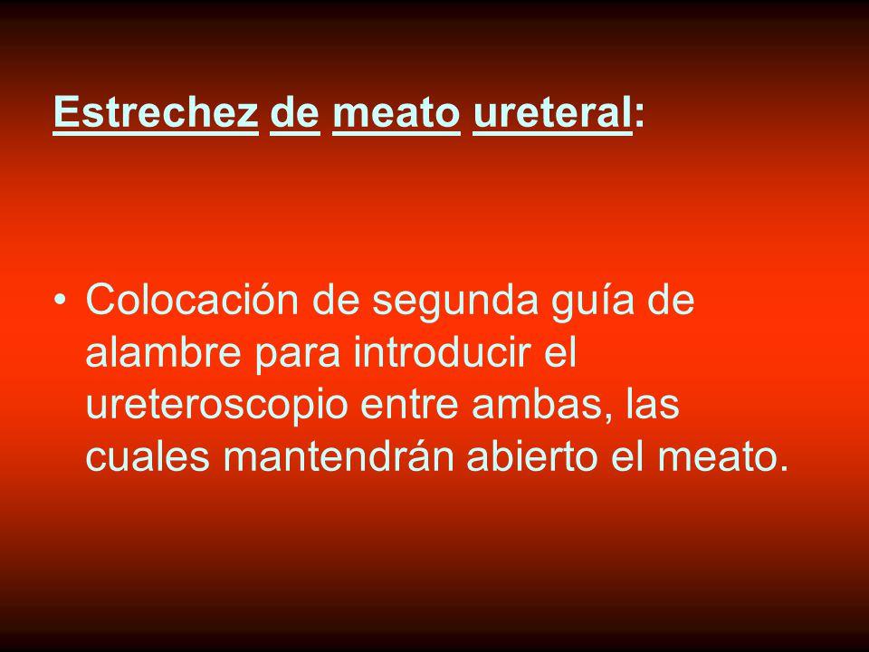 Estrechez de meato ureteral: Colocación de segunda guía de alambre para introducir el ureteroscopio entre ambas, las cuales mantendrán abierto el meato.