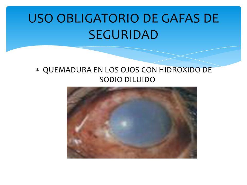 USO OBLIGATORIO DE GAFAS DE SEGURIDAD  QUEMADURA EN LOS OJOS CON HIDROXIDO DE SODIO DILUIDO
