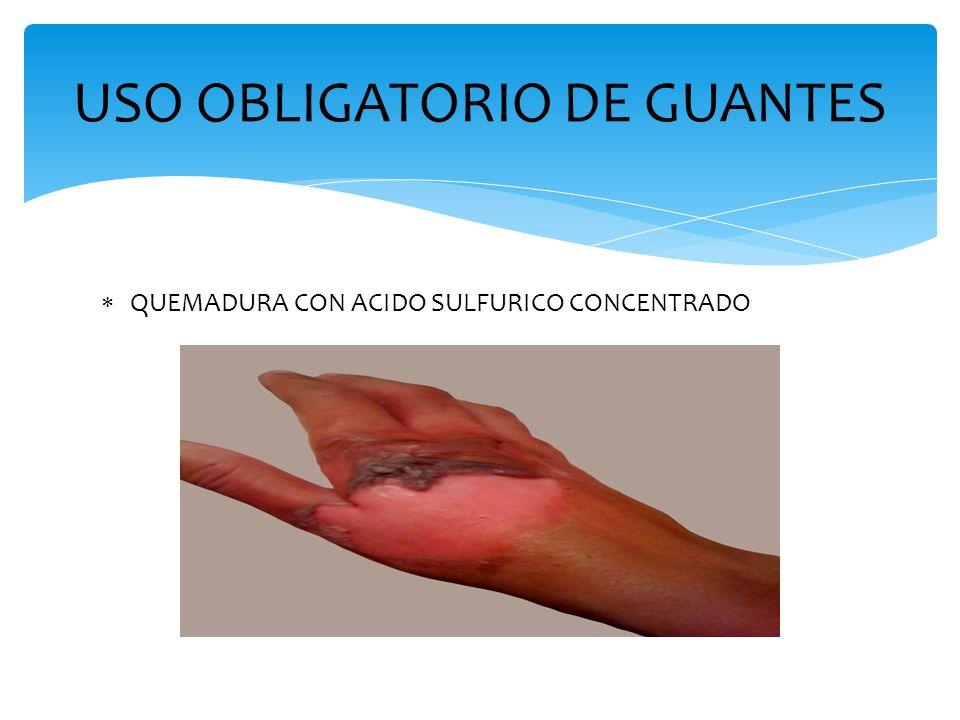  QUEMADURA CON ACIDO SULFURICO CONCENTRADO USO OBLIGATORIO DE GUANTES