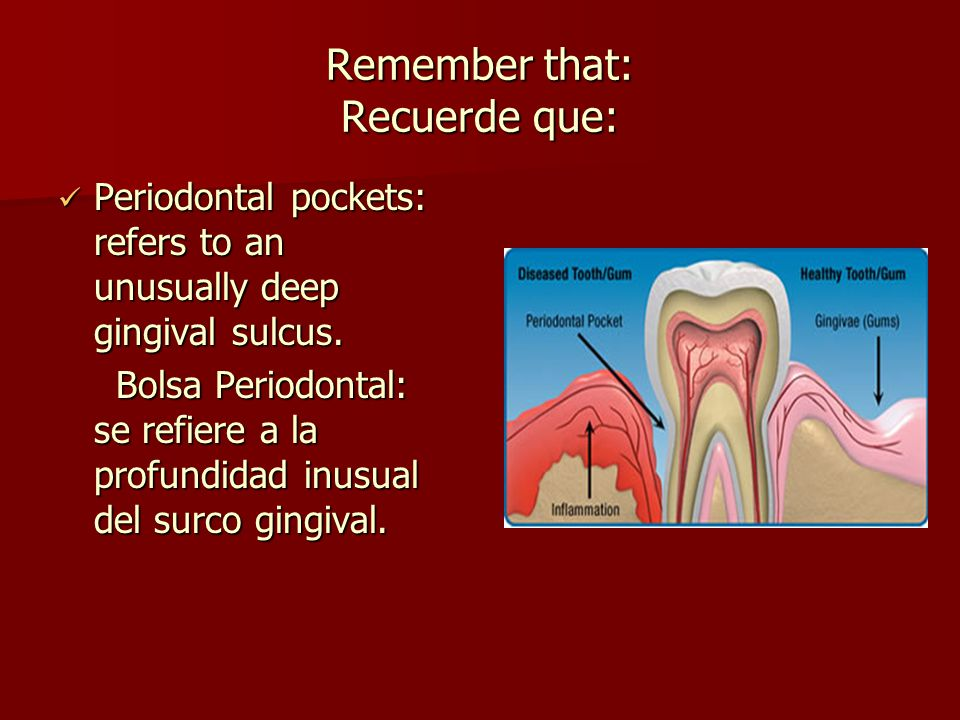 Remember that: Recuerde que: Periodontal pockets: refers to an unusually deep gingival sulcus.