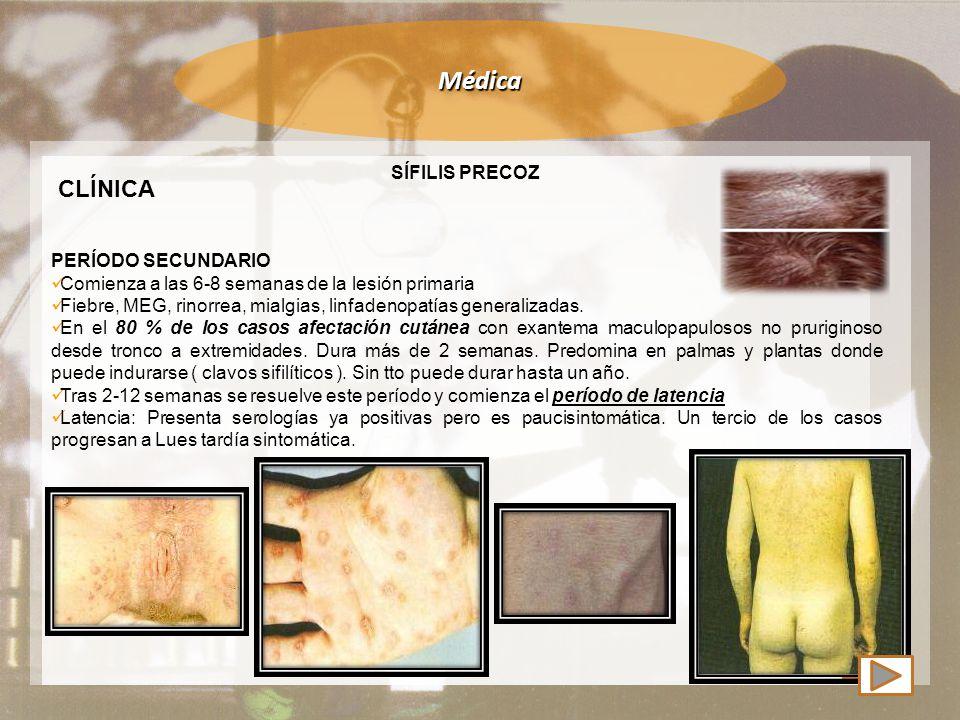 Médica CLÍNICA SÍFILIS PRECOZ PERÍODO SECUNDARIO Comienza a las 6-8 semanas de la lesión primaria Fiebre, MEG, rinorrea, mialgias, linfadenopatías generalizadas.