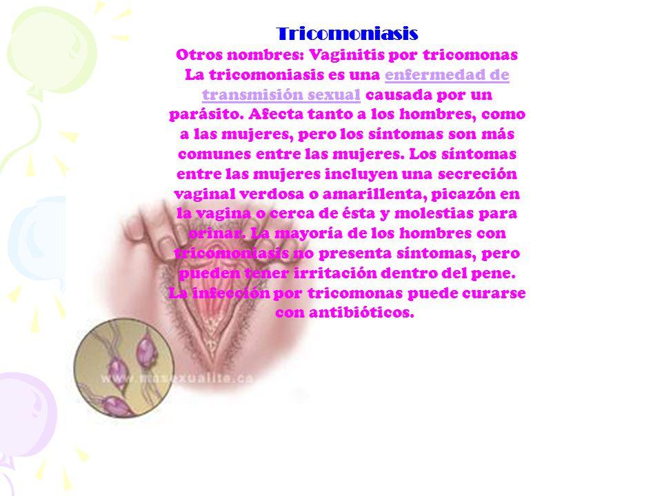 Tricomoniasis Otros nombres: Vaginitis por tricomonas La tricomoniasis es una enfermedad de transmisión sexual causada por un parásito. Afecta tanto a