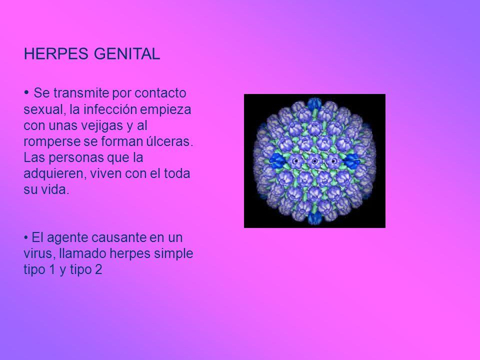 HERPES GENITAL Se transmite por contacto sexual, la infección empieza con unas vejigas y al romperse se forman úlceras. Las personas que la adquieren,