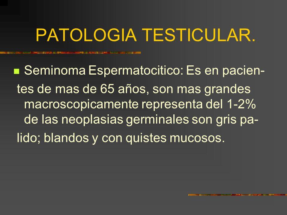PATOLOGIA TESTICULAR. Seminoma Espermatocitico: Es en pacien- tes de mas de 65 años, son mas grandes macroscopicamente representa del 1-2% de las neop