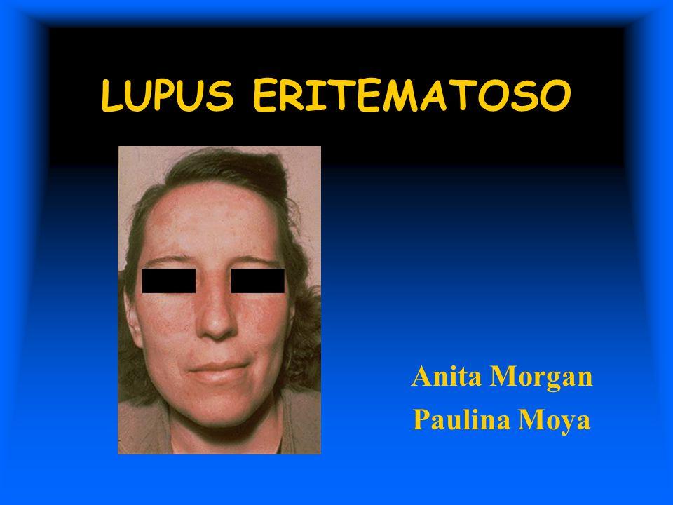 LUPUS ERITEMATOSO Anita Morgan Paulina Moya