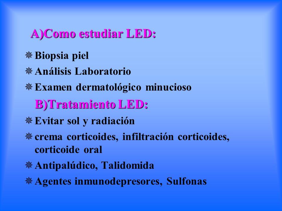 A)Como estudiar LED: A)Como estudiar LED:  Biopsia piel  Análisis Laboratorio  Examen dermatológico minucioso B)Tratamiento LED: B)Tratamiento LED: