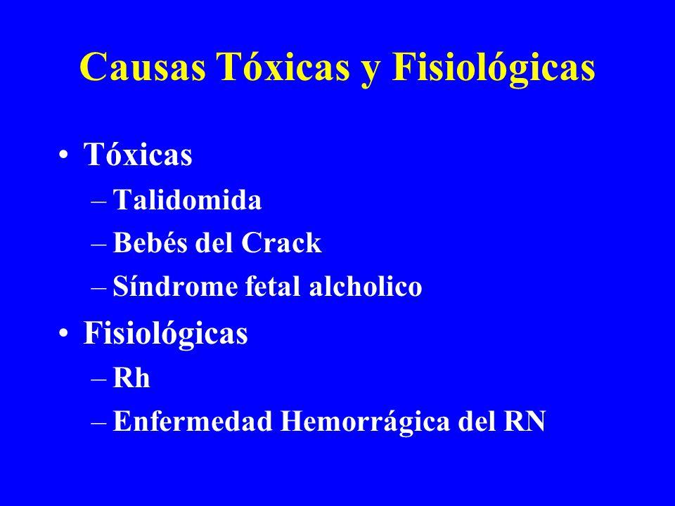 Causas Tóxicas y Fisiológicas Tóxicas –Talidomida –Bebés del Crack –Síndrome fetal alcholico Fisiológicas –Rh –Enfermedad Hemorrágica del RN