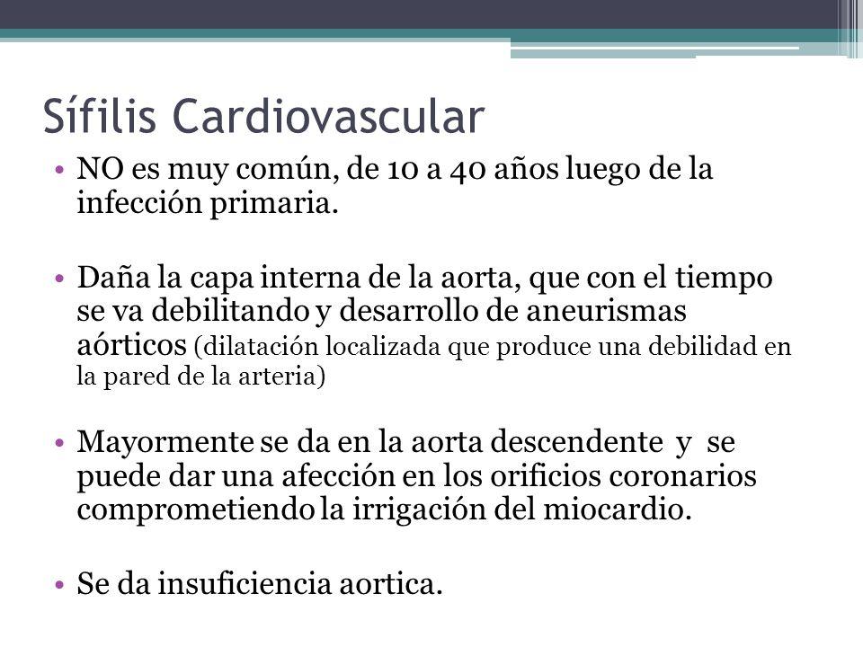 Sífilis Cardiovascular NO es muy común, de 10 a 40 años luego de la infección primaria.