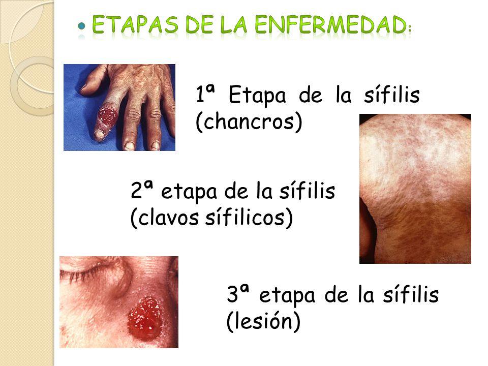 1ª Etapa de la sífilis (chancros) 2ª etapa de la sífilis (clavos sífilicos) 3ª etapa de la sífilis (lesión)