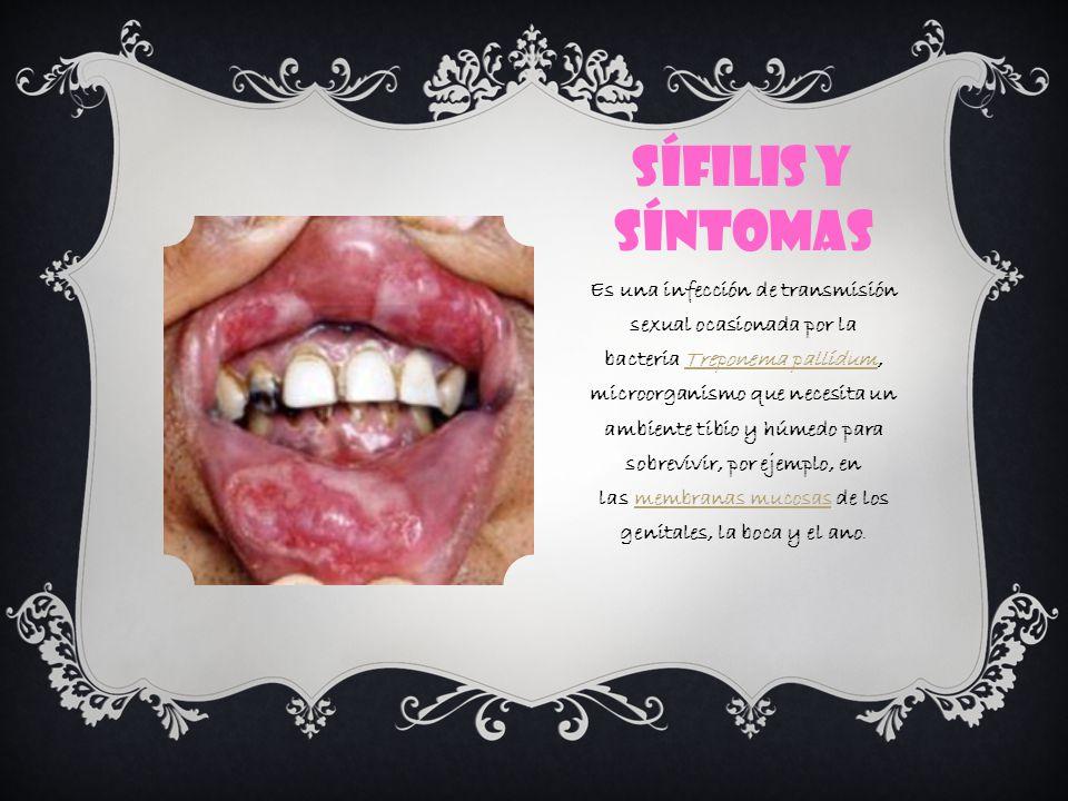 SÍFILIS Y SÍNTOMAS Es una infección de transmisión sexual ocasionada por la bacteria Treponema pallidum, microorganismo que necesita un ambiente tibio y húmedo para sobrevivir, por ejemplo, en las membranas mucosas de los genitales, la boca y el ano.Treponema pallidummembranas mucosas