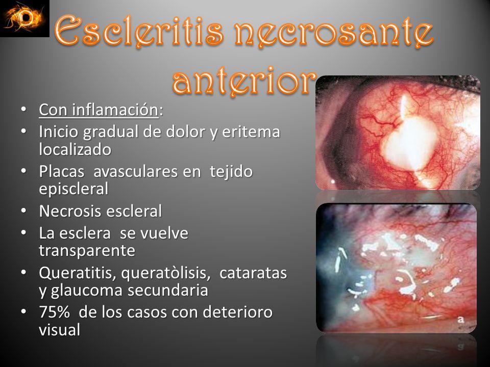 Con inflamación: Con inflamación: Inicio gradual de dolor y eritema localizado Inicio gradual de dolor y eritema localizado Placas avasculares en tejido episcleral Placas avasculares en tejido episcleral Necrosis escleral Necrosis escleral La esclera se vuelve transparente La esclera se vuelve transparente Queratitis, queratòlisis, cataratas y glaucoma secundaria Queratitis, queratòlisis, cataratas y glaucoma secundaria 75% de los casos con deterioro visual 75% de los casos con deterioro visual