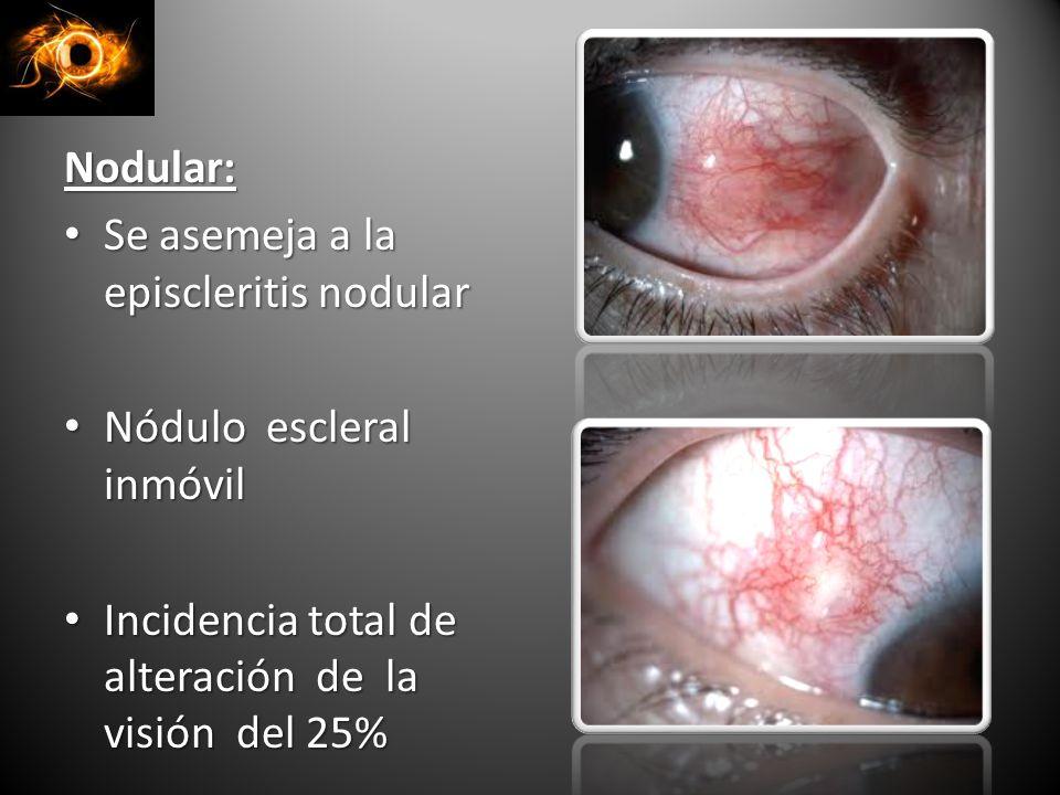 Nodular: Se asemeja a la episcleritis nodular Se asemeja a la episcleritis nodular Nódulo escleral inmóvil Nódulo escleral inmóvil Incidencia total de alteración de la visión del 25% Incidencia total de alteración de la visión del 25%